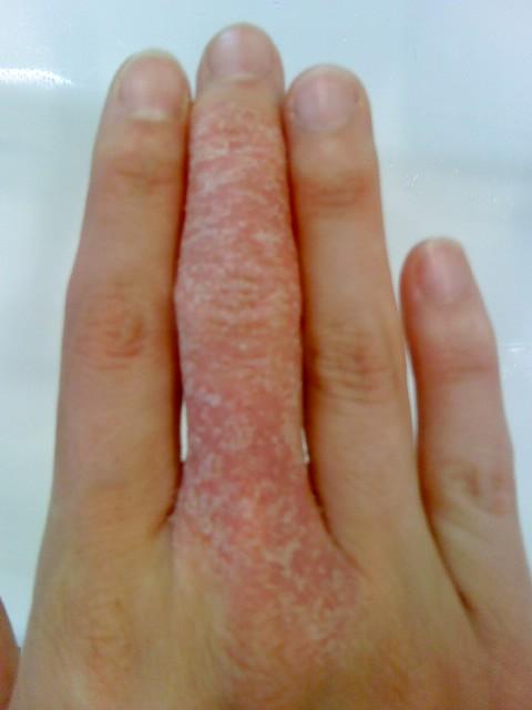 2010-11, Chronic middle finger rash.