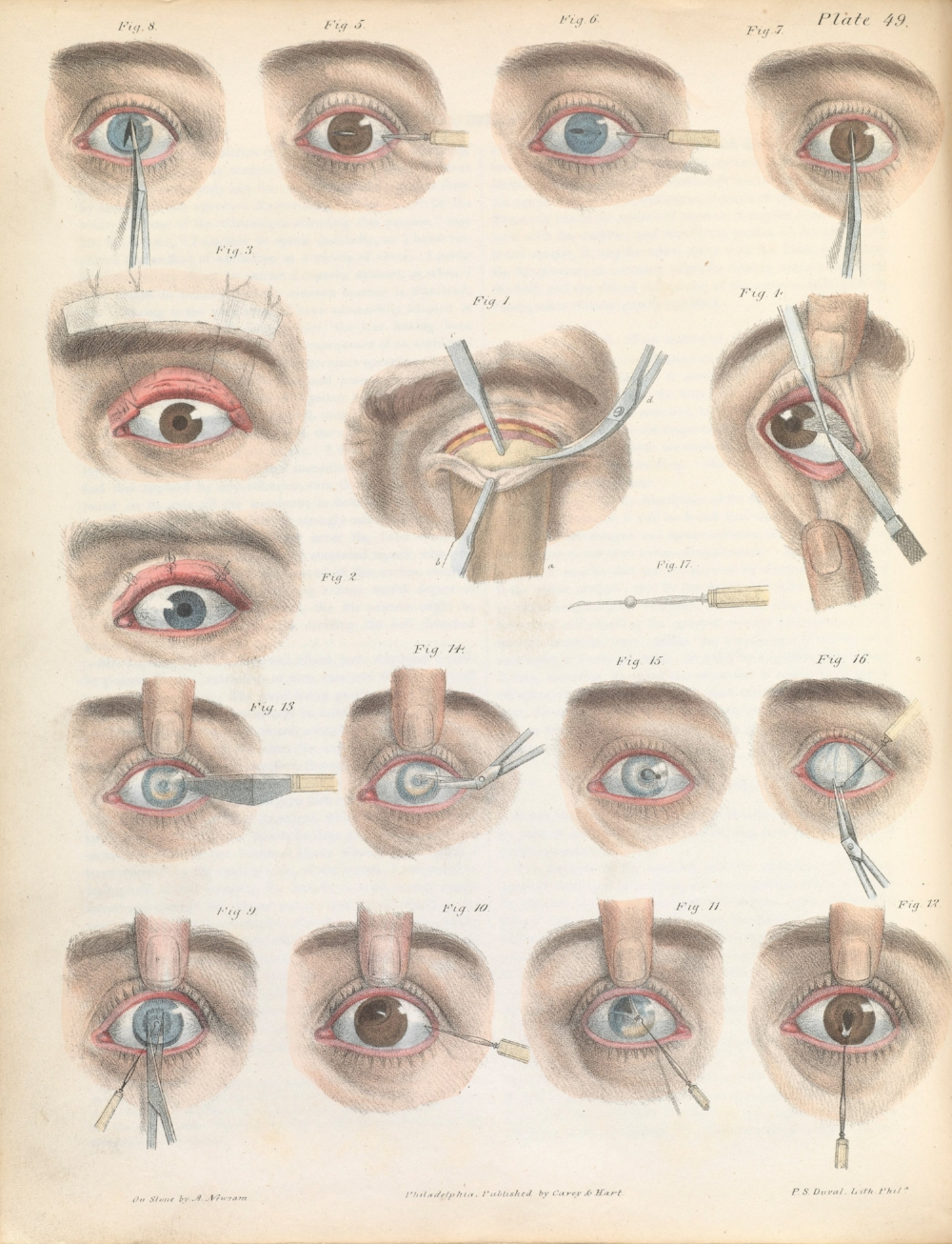 Plate XLIX. Various surgical treatments on the eye.  Credit: Wellcome Collection
