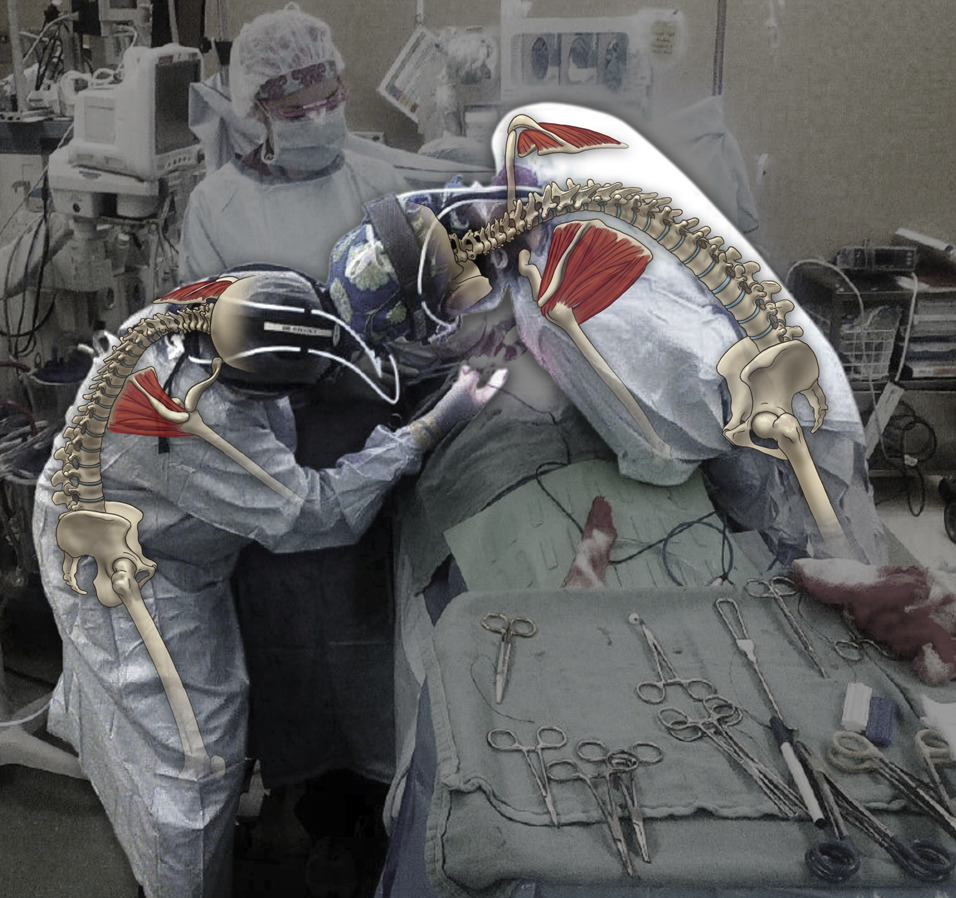 Actual photo of surgeons at work in the operating room with ergonomically poor posture, plus a graphic artist's overlay depicting excessive curvature and rotation of the cervical, thoracic, and lumbar spine. (Image Credit: Jordan Pietz, MA. © 2016 The University of Texas MD Anderson Cancer Center. Taken from Voss, et. al. 2017)