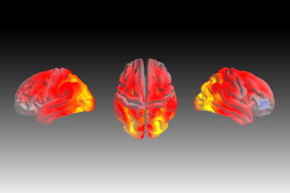 many faces of dementias MOOC LEAD IMAGE.jpg