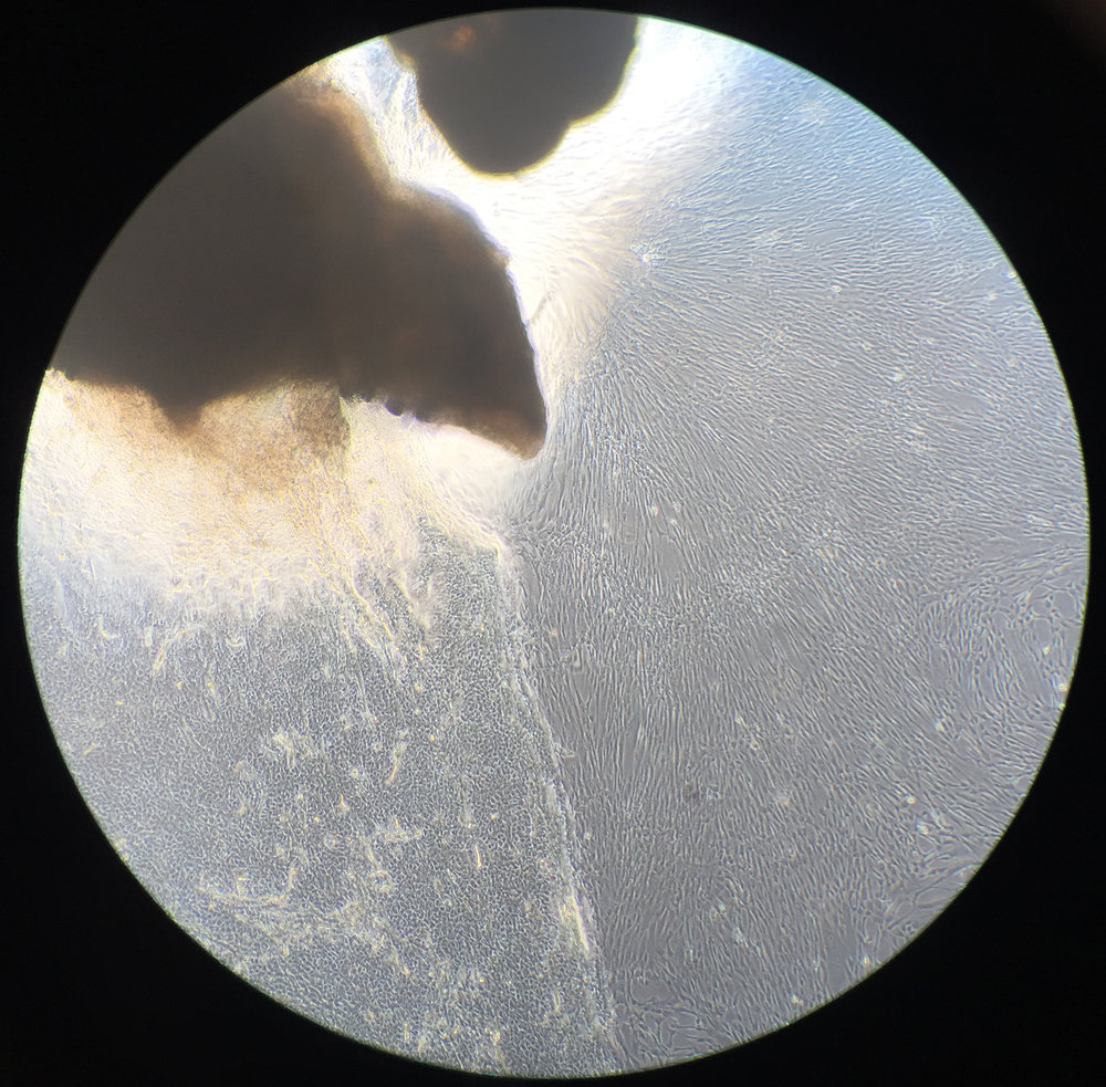 The first stage of Phil's growing 'mini-brain'. Biopsy through the eye piece with an iPhone, using a light microscope. Image: Chris Lovejoy and Charlie Arber, UCL Institute of Neurology.