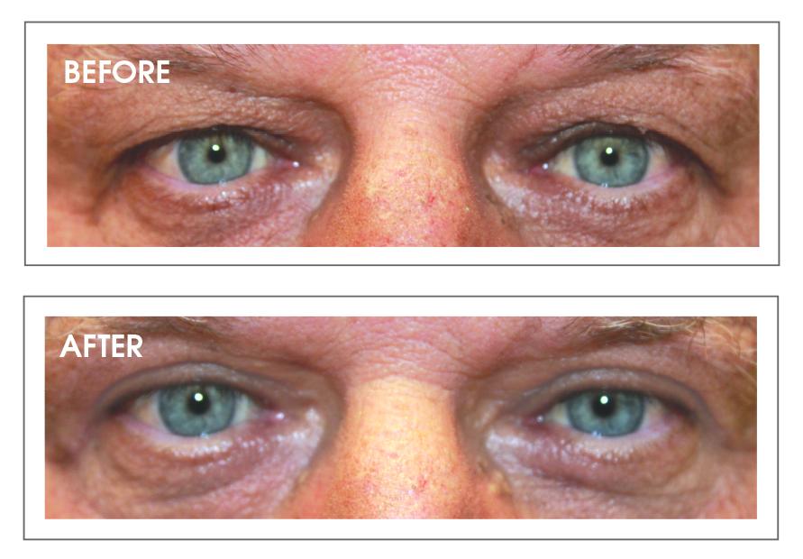 Eyelid Surgery – Giving Your Outlook a Lift — Lake Eye