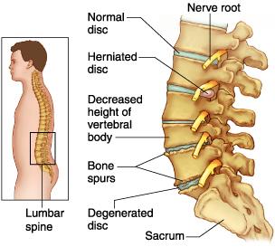 Spinal discs.jpg