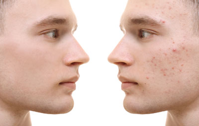 Before After Acne 400pix.jpg