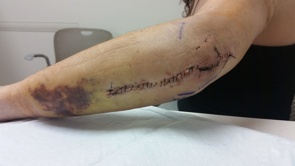 My left arm, after removal of the cast from my first surgery, October 2015.