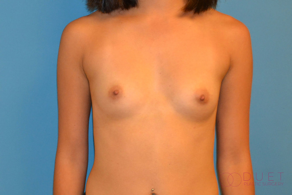 breast-augmentation-pre-1-watermarked.jpg