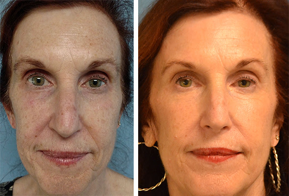 Actual Duet patient before treatment and 6 weeks after 1 Fraxel Dual Treatment   unretouched photos