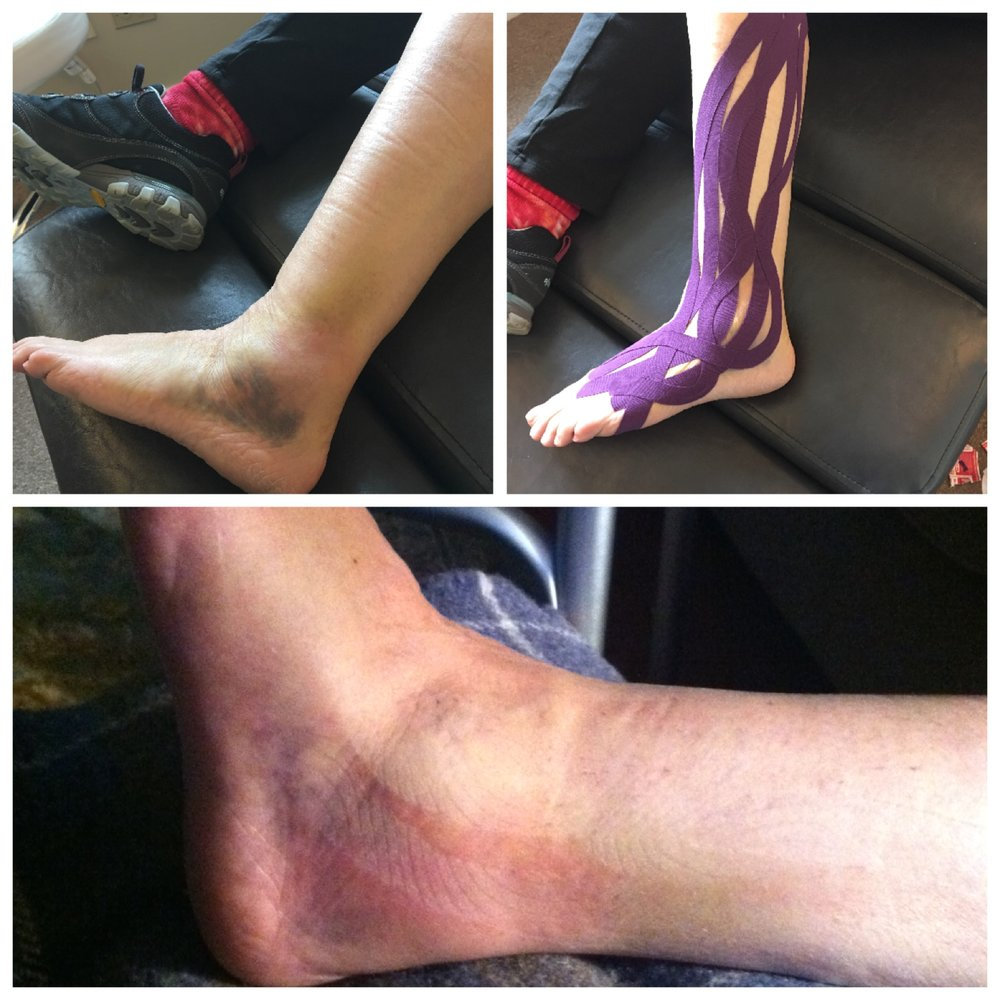 Here's a GREAT example of how effective tape can be. This tape was applied after a broken foot. You can see the amount of bruising and swelling before the tape, the completed tape job for draining the edema, and then after the tape was removed {ONLY 3 DAYS LATER!}.