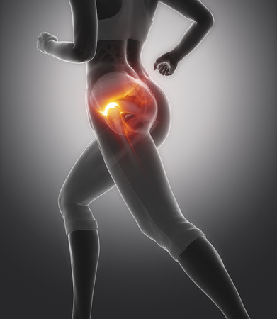 Hip-Pain.jpg