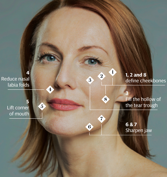 Multipoint Facelift - Beautifully enhance the shape of your face