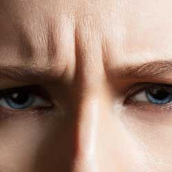GLABELLA - Glabella – Frown LinesThe Glabella is the area between your brows. Over time, some may find that there is a deep line that becomes quite prominent. The use of anti-wrinkle injections can not only relax the muscle to stop you overworking that area, it can also reduce the appearance of that static groove.