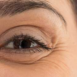 Crows Feet - corner of the eyeThis is a concern many of our patients have. Many believe the eye area to be the most obvious sites for ageing. The lines that appear at the corners of our eyes and extend down on the face are a real depiction of ageing.