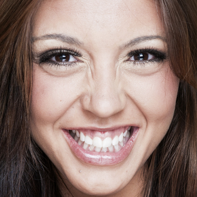 Gummy Smile - Is the appearance of your smile overshadowed by excessive display of gum?
