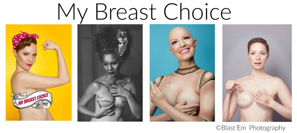 Mastectomy Photo Series