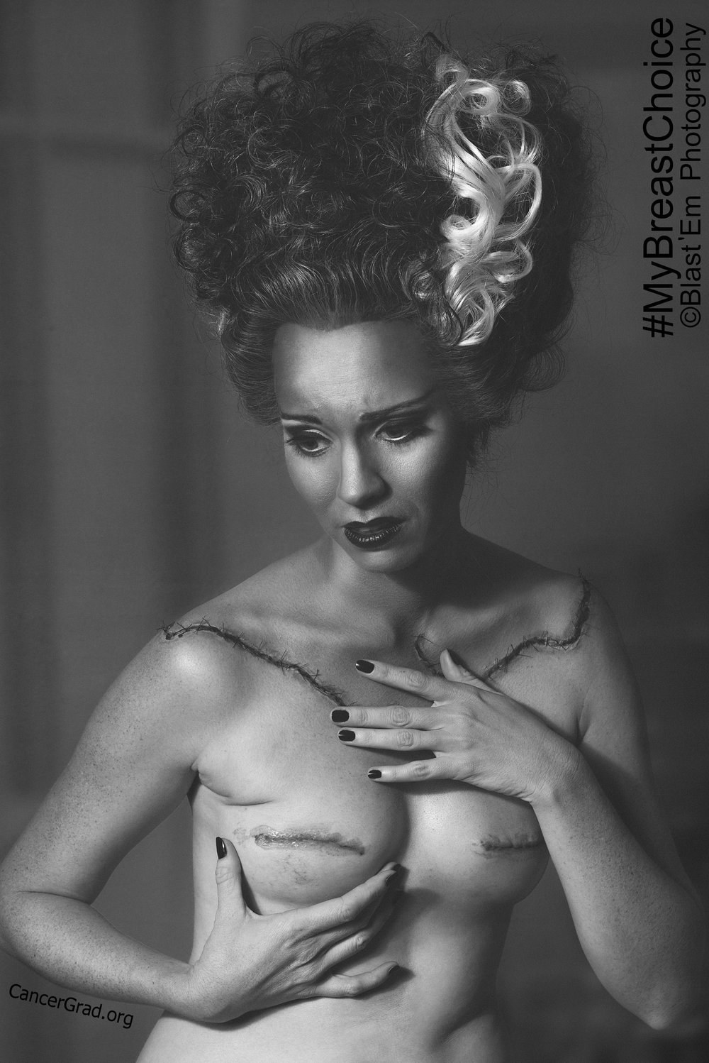 """Cut to Pieces""    Photographer- Blast 'Em            MUA & Hair- Brynn Berg                  Model- Aniela McGuinness  Two weeks after my double mastectomy."
