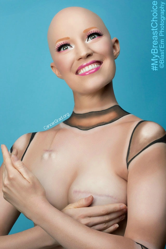 """Plastic Emotions""  Photographer- Blast 'Em                MUA- Tiffany Alfonso                    Model- Aniela McGuinness  At the end of 4 months of chemo and with the expanders filled."
