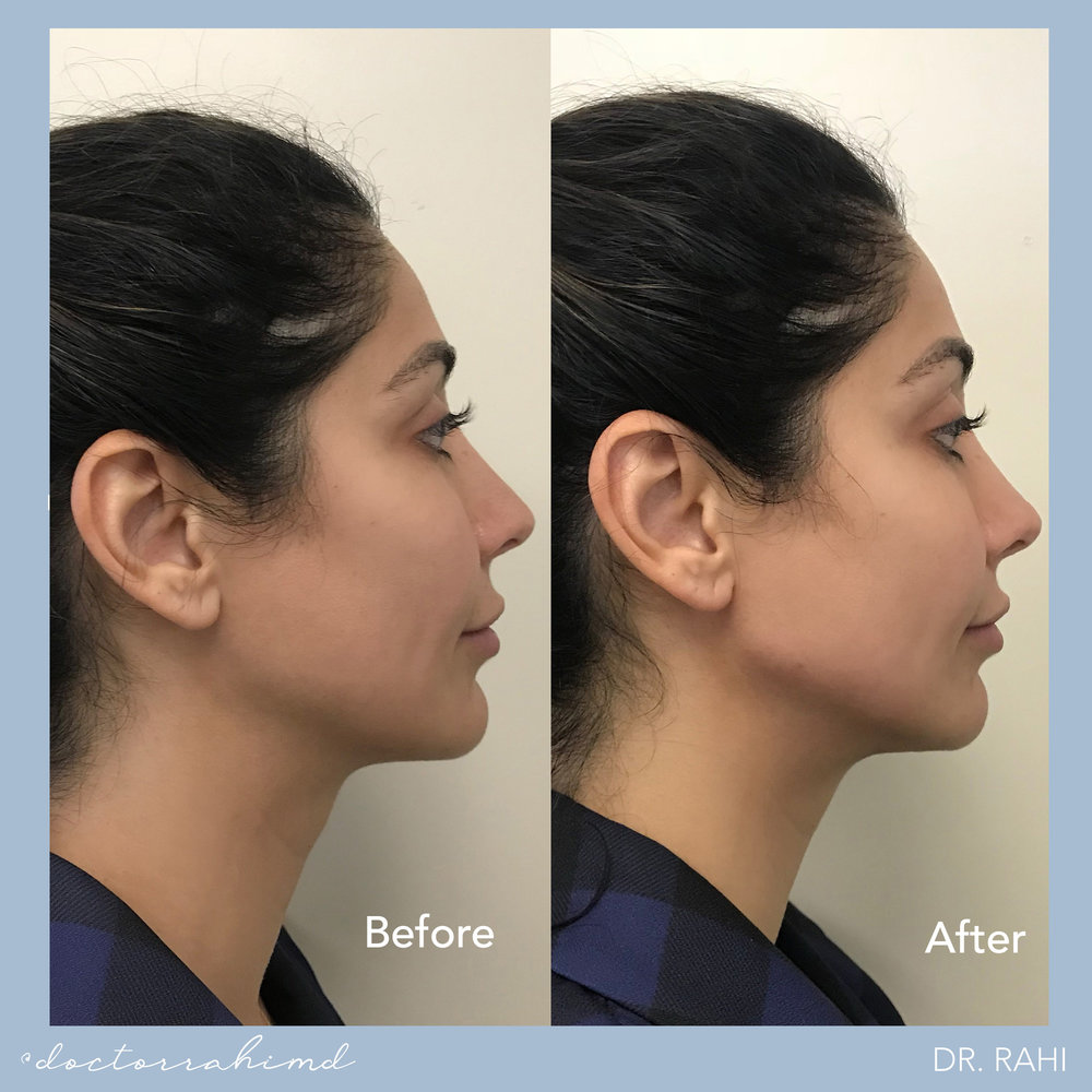DEFINING THE CHIN WITH FILLER