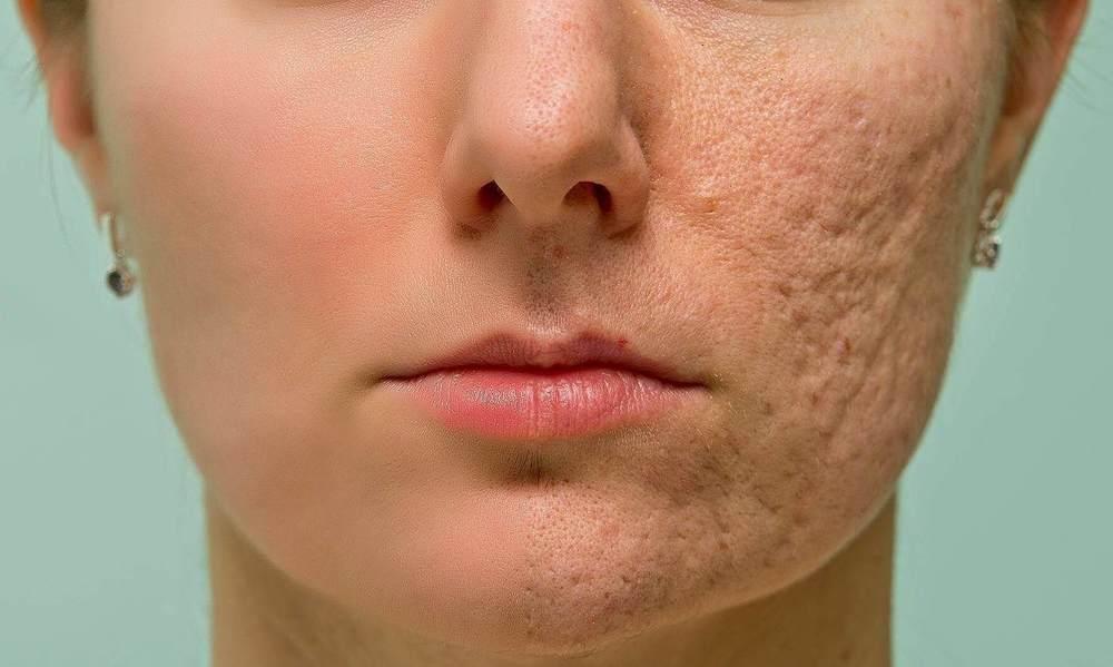 How-to-retouching-Skin-retaining-Texture.jpg