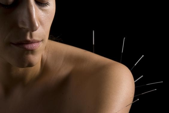 818-acupuncture---shoulder-treatment.jpg