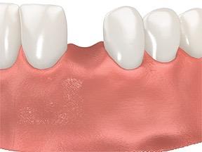single tooth with Ti base 1 good.jpg