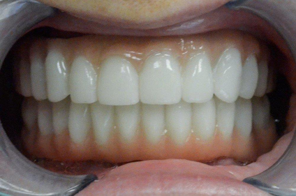 Patient 3 after
