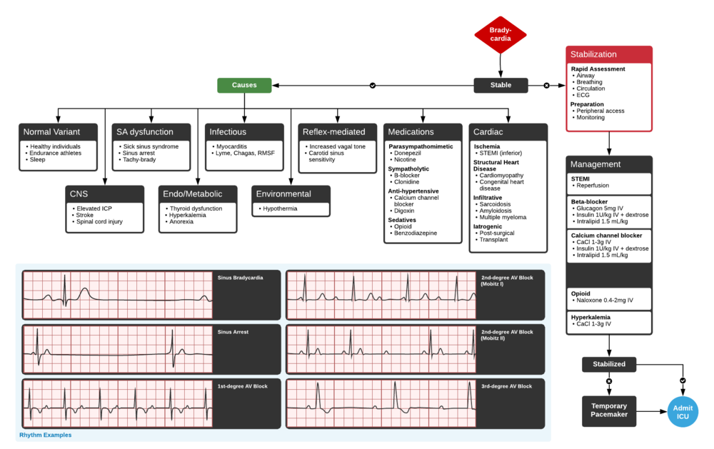 Full ddxof.com article and algorithm on Bradycardia can be found at  https://ddxof.com/?_sf_s=bradycardia