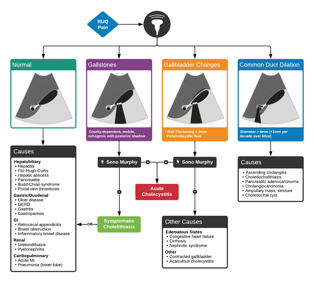 Full ddxof.com article and algorithm on Hepatobiliary Ultrasound can be found at https://ddxof.com/hepatobiliary-ultrasound/
