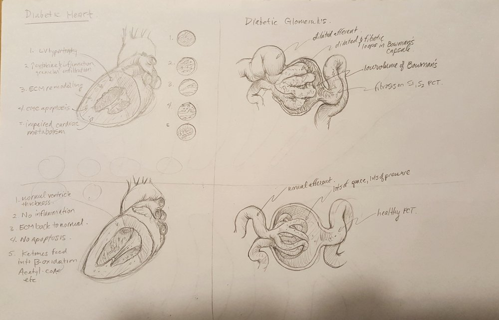 "This was the first sketch of the first image contrasting the diabetic heart and glomerulus. ""Disaster heart and glomerulus"" at the top, and the heart and glomerulus with NHE inhibitors at work, all the disasterous effects of diabetes slightly ameliorated. The squiggly line notes are just illustration notes of what I'm  trying  to show and am usually not able to geven the crudeness of the initial sketch."