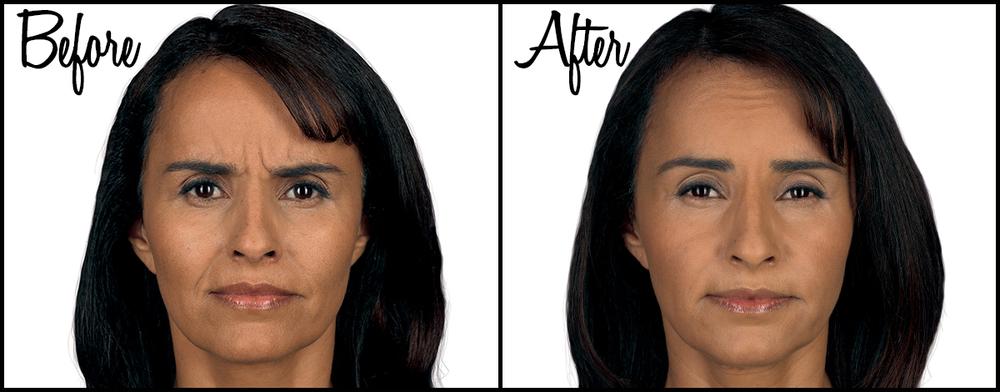 Botox B&A 01.jpg