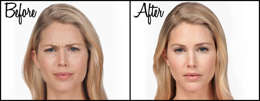 Botox B&A 03.jpg