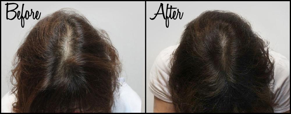 Hair Thinning B&A 02.jpg