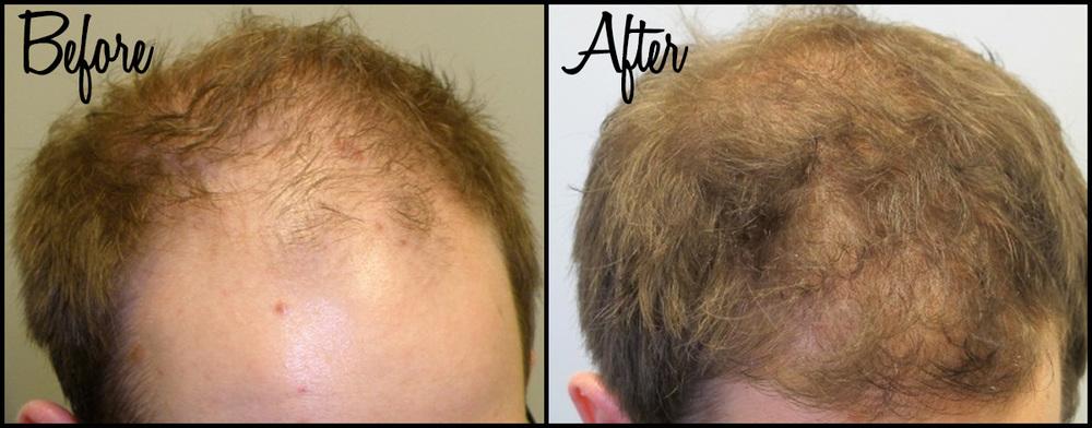 Hair Thinning B&A 04.jpg