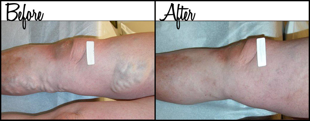 Vein Therapy B&A 03.jpg