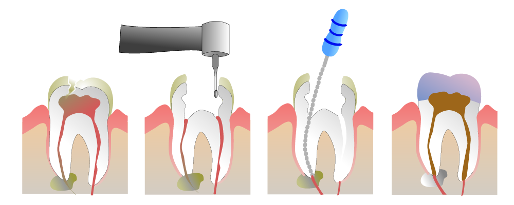 Root_Canal_Illustration_Molar.png