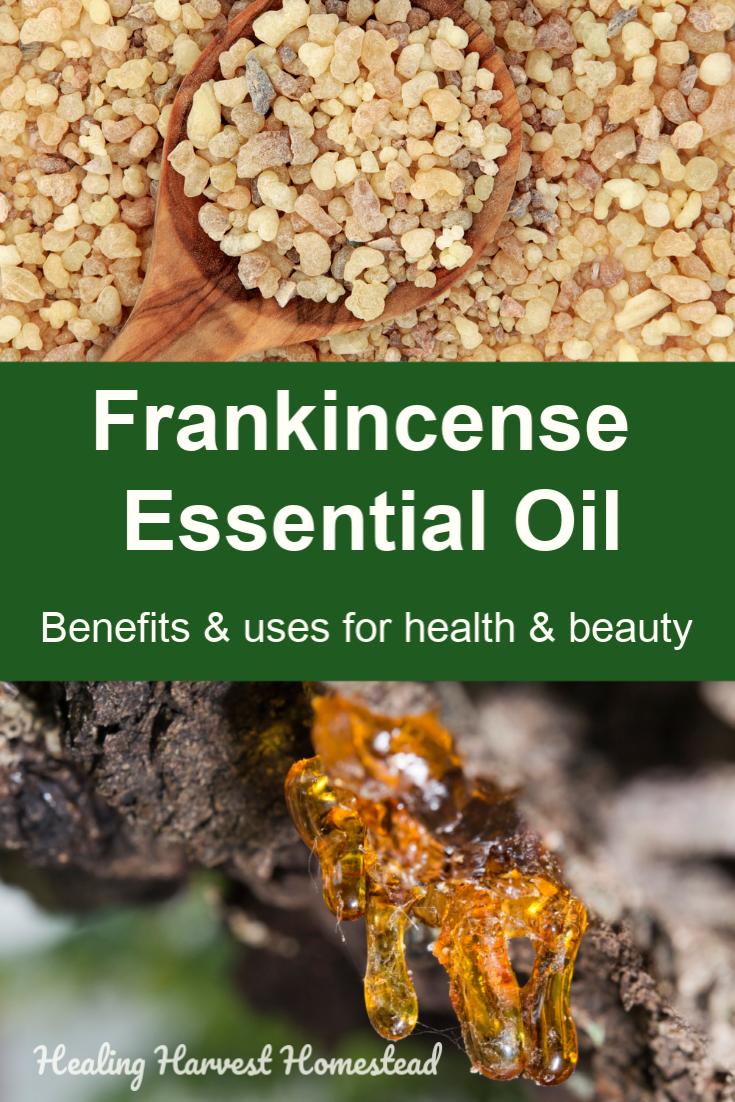 Why would anyone want to use frankincense essential oil? Find out the incredible benefits and uses of frankincense essential oil, PLUS how to use it. Why do you need Frankincense essential oil in your home? Find out all the things to know about Frankincense essential oil and ways to use it! #frankincense #essentialoil #benefits #uses #frankincenseessentialoil #healingharvesthomestead #frankincensetherapy #firstaid #naturalmedicine
