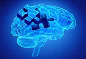 img-brain-injuries.jpg