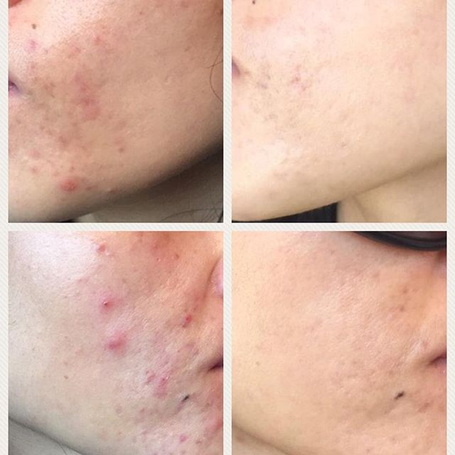 Transformation Tuesday! @venushealthbeauty just shared the most incredible client transformation. No acne, no edits, just visibly clearer looking skin. They credit Dermalux LED and topical skincare for helping their client kick some major skincare goals!! . . . . #dermaluxledaus #dermaluxled #dermalux #ledtherapy #ledlighttherapy #antiaging #skintreatment #beautytreatment #underthedermalux #radiantskin #glowingskin #noninvasive #rejuvenate #skincare #happylight #beforeandafter #beautysalon #clinic #realresults #beauty #transformation #acne