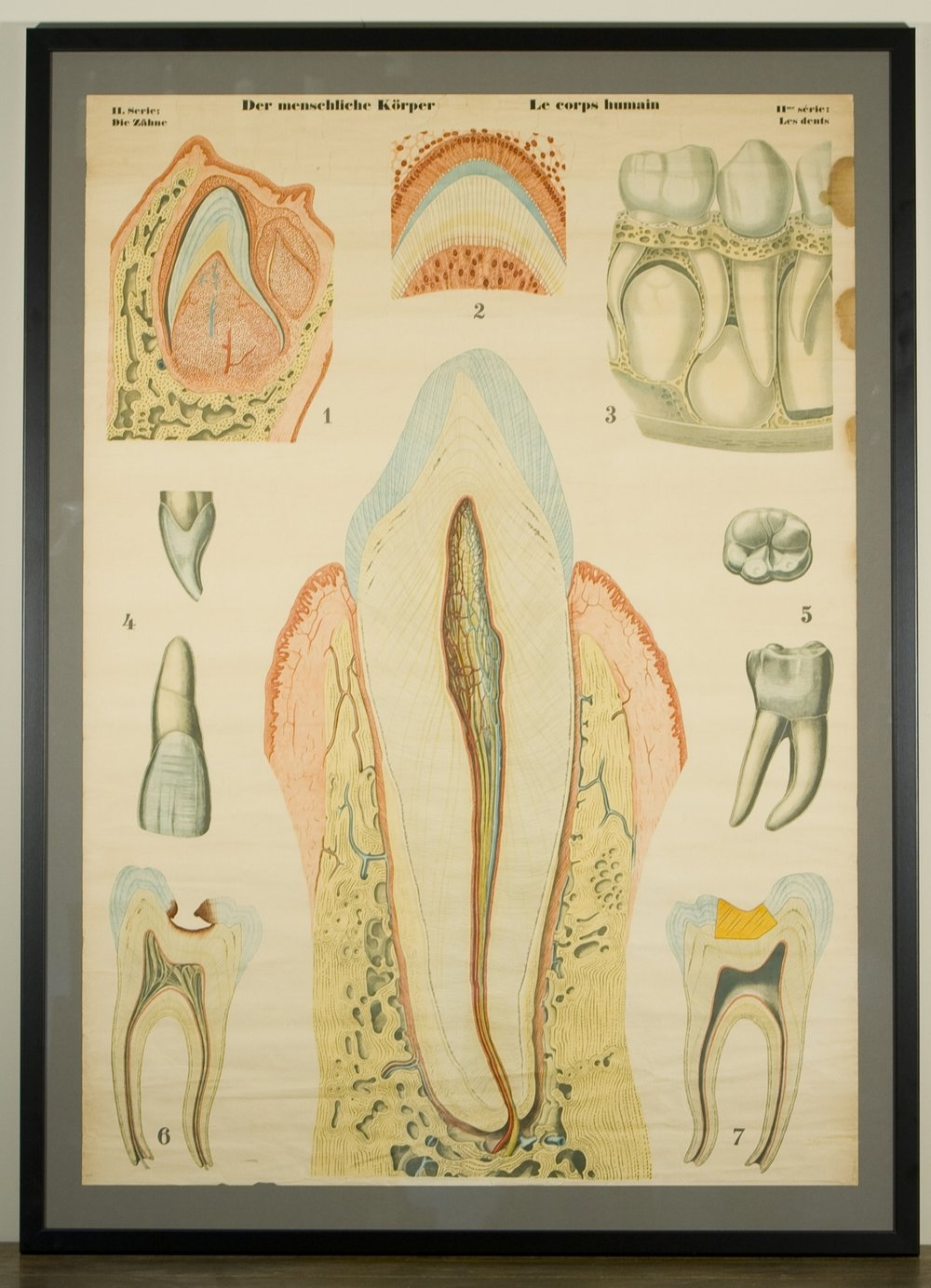 Vintage Framed Chart of Human Teeth