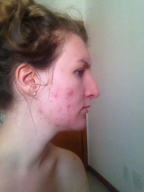 My skin in 2014