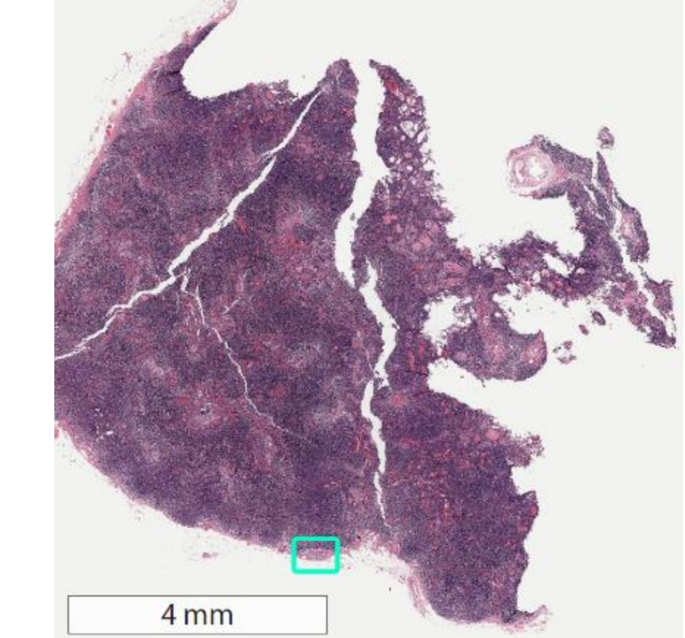Whole-slide image of sentinel lymph node biopsy with area of metastatic breast cancer highlighted in green square.