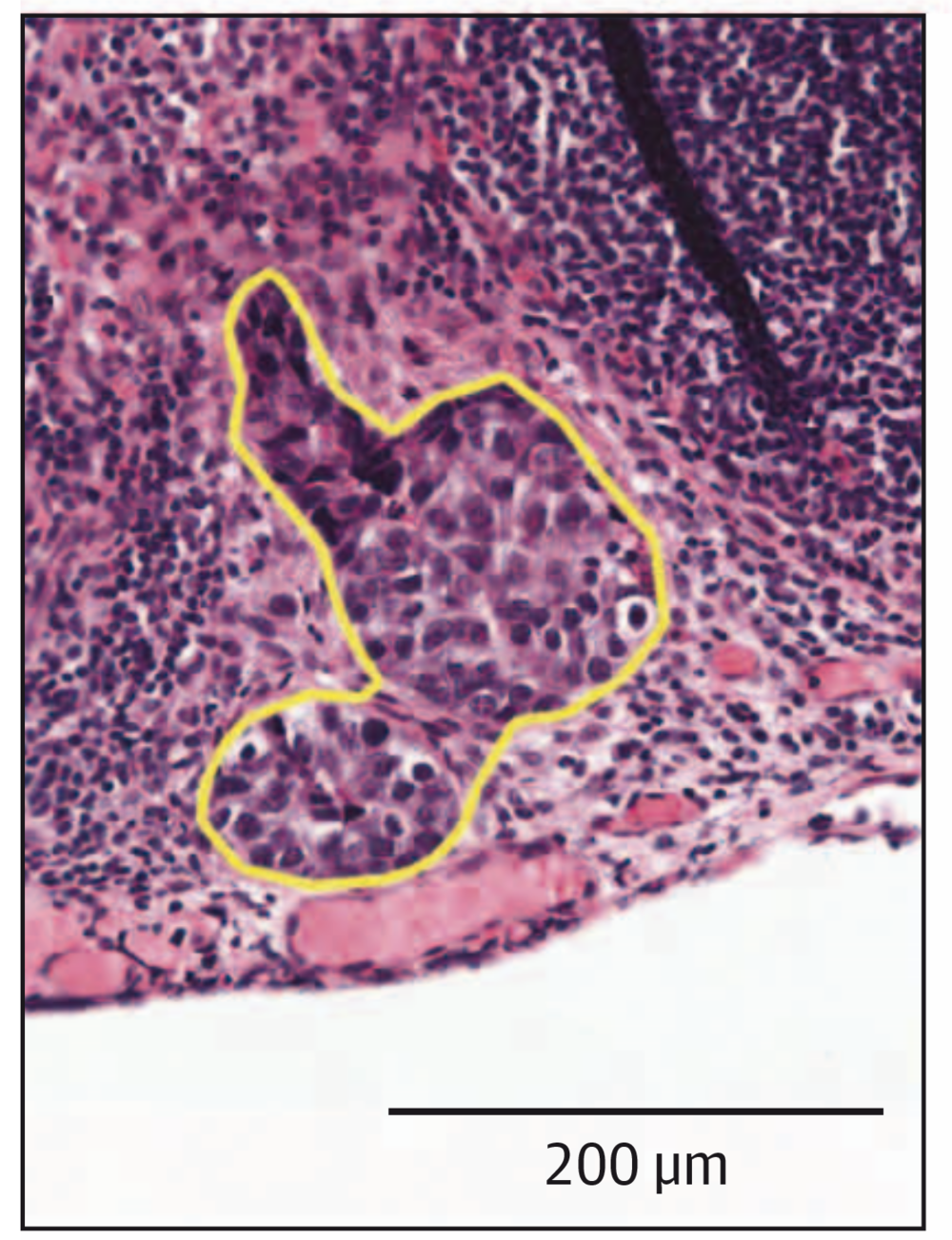 Hand-labeled focus of metastatic breast cancer in lymph node slide.