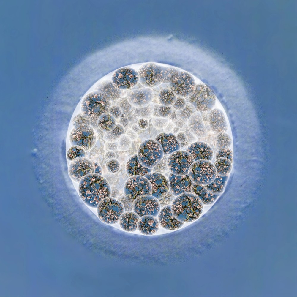 New beginnings - Blastocyst