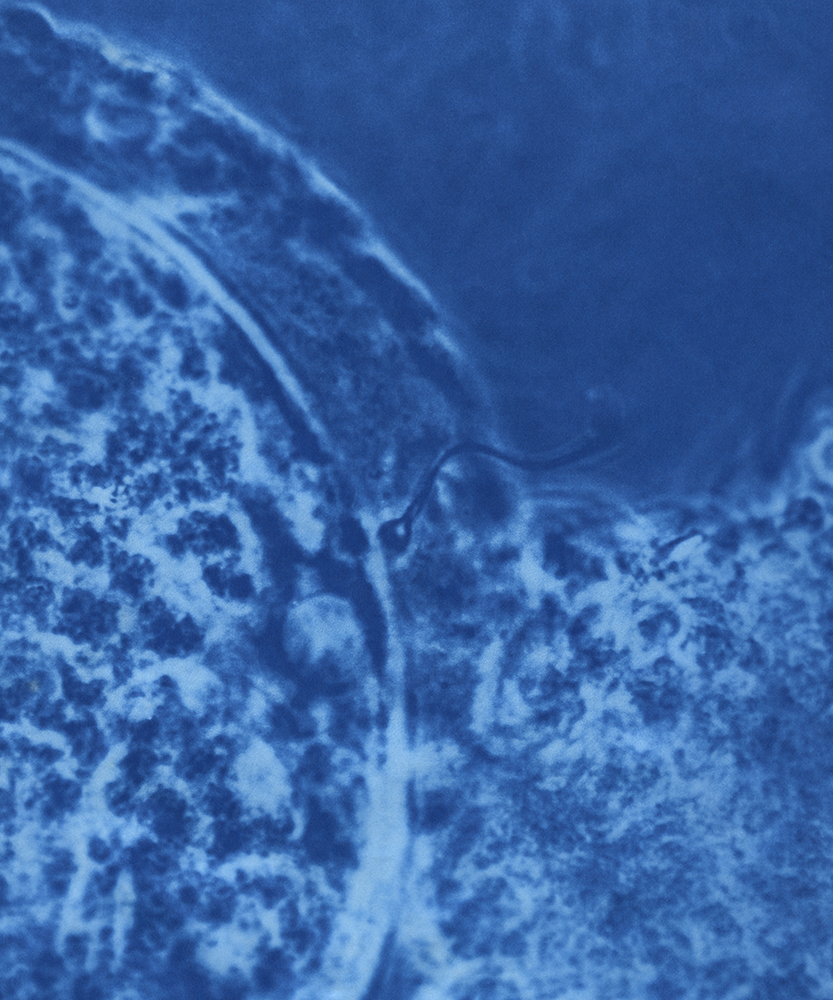 Oocyte with sperm