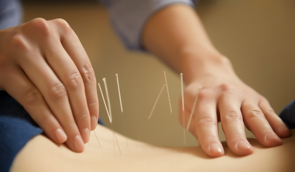 Acupuncture and Chinese Medicine are a Busy Woman's Best Friend- LIFE SMART by Carrie Dorr