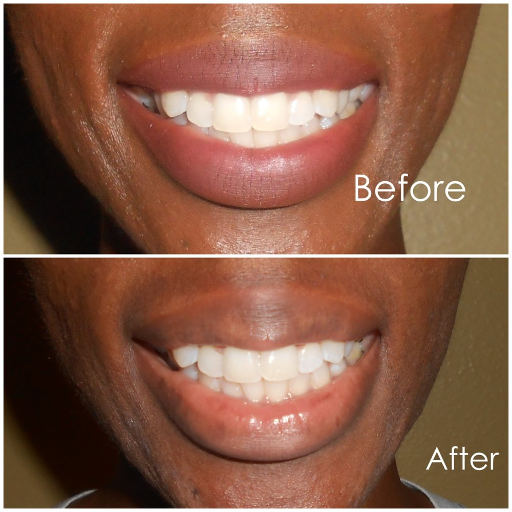 Here are my results!!! For me I already had kind of white teeth, but the whitening system made my teeth a lot brighter and I think the system is great for maintenance and keeping that Smile Pretty!! All results vary from person to person. No ones teeth are the exact same when it comes to how white in color they are.