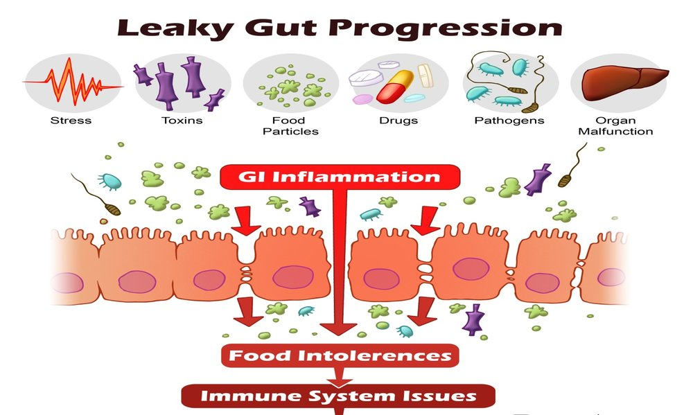 causes-of-leaky-gut-syndrome-leaky-gut-progression.jpg