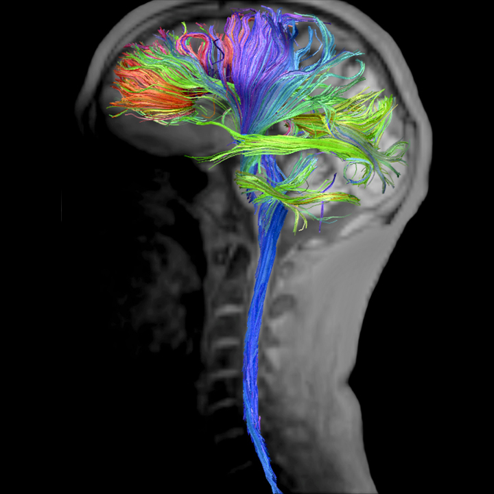 The Sense of Self in Posterior Cingulate