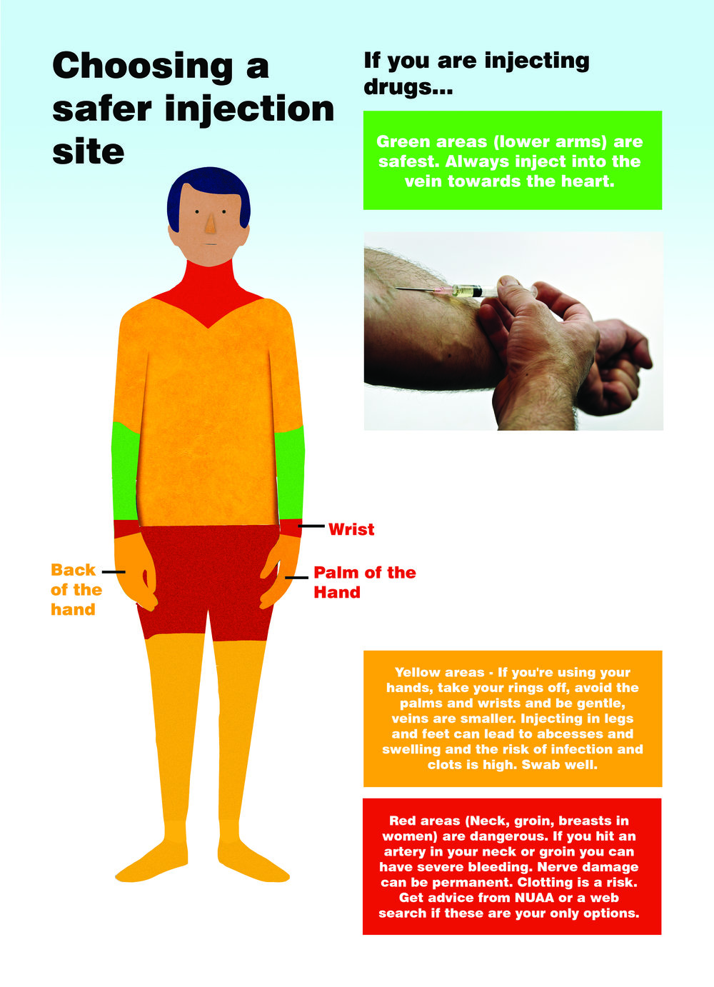 CHOOSING A SAFER INJECTING SITE — POSTER — User's News