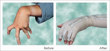 DMO wrist hand orthotic