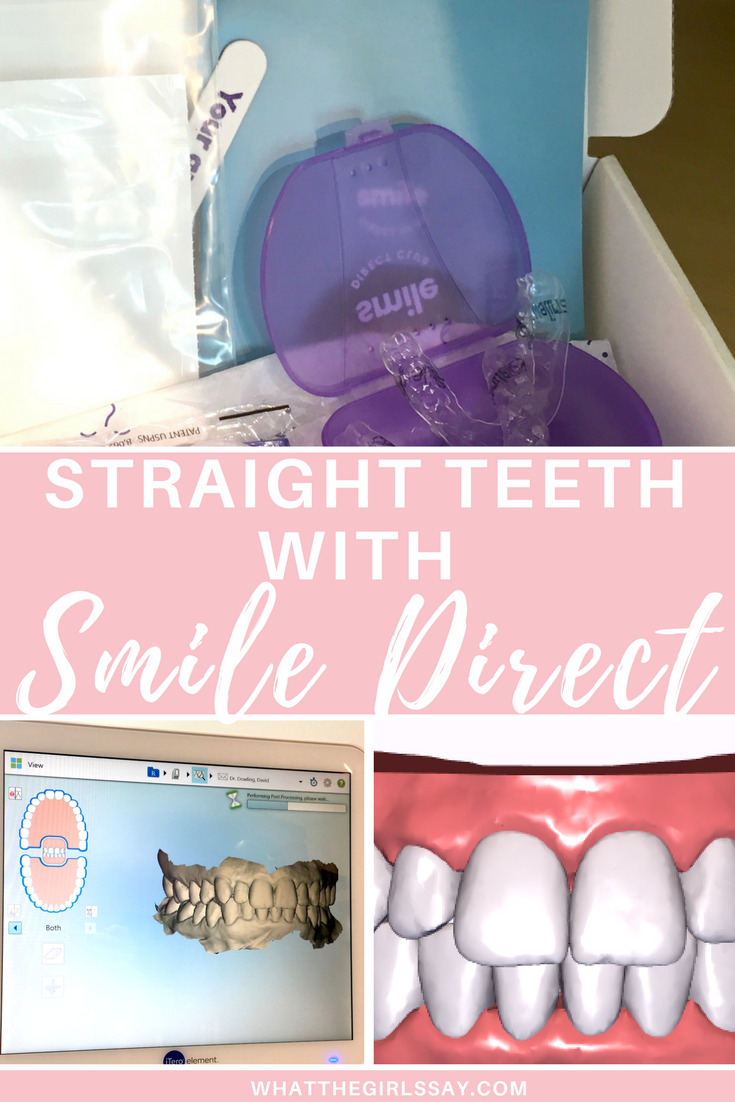 Box Contents Smile Direct Club  Clear Aligners